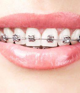 Ortodoncia. Clínica Dental Tierra Estella