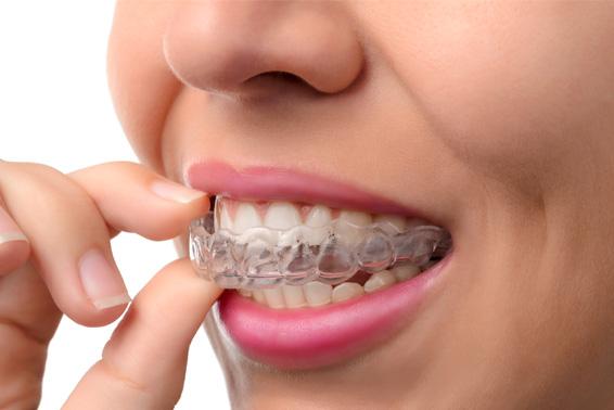bruxismo-tratamientos-clinica-dental-tierra-estella