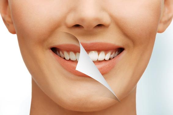 estetica-dental-tratamientos-clinica-dental-tierra-estella