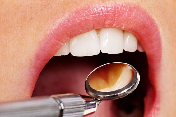 periodoncia-tratamientos-clinica-dental-tierra-estella