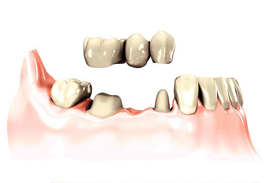 protesis-fijas-tratamientos-clinica-dental-tierra-estella